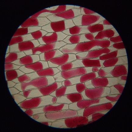 onion epidermis when plasmolysed